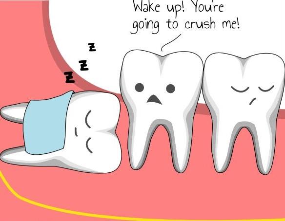 Wisdom Teeth  - The Treatment Centre