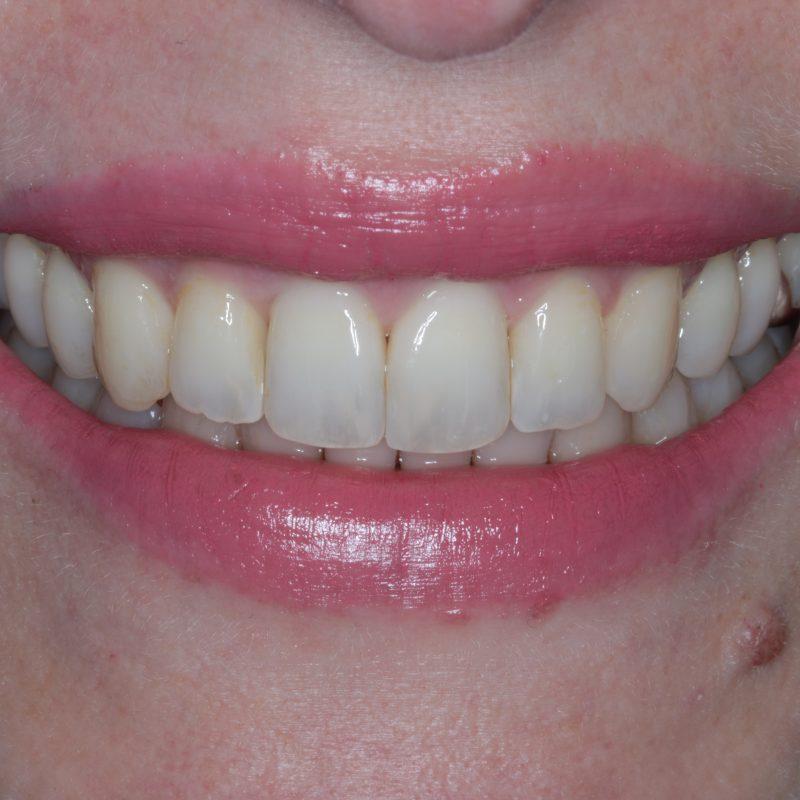 NHS Braces | Orthodontics | Orthodontist Stoke on Trent